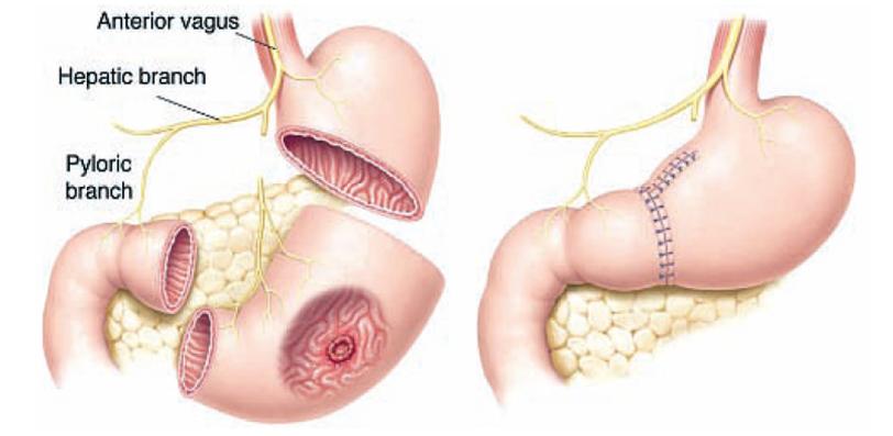 papilloma jak se zbavit pentru a ajuta copiii cu enterobioză