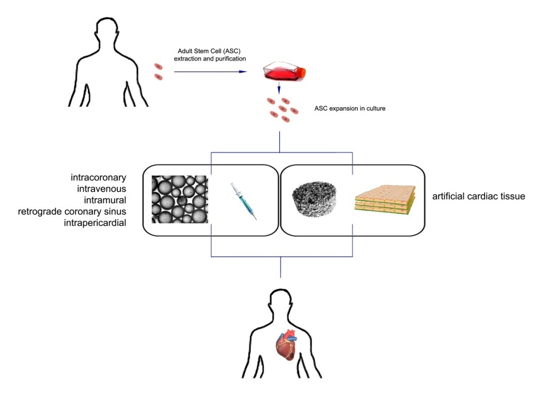 Cardiac Muscle Engineering Strategies To Deliver Stem Cells To The
