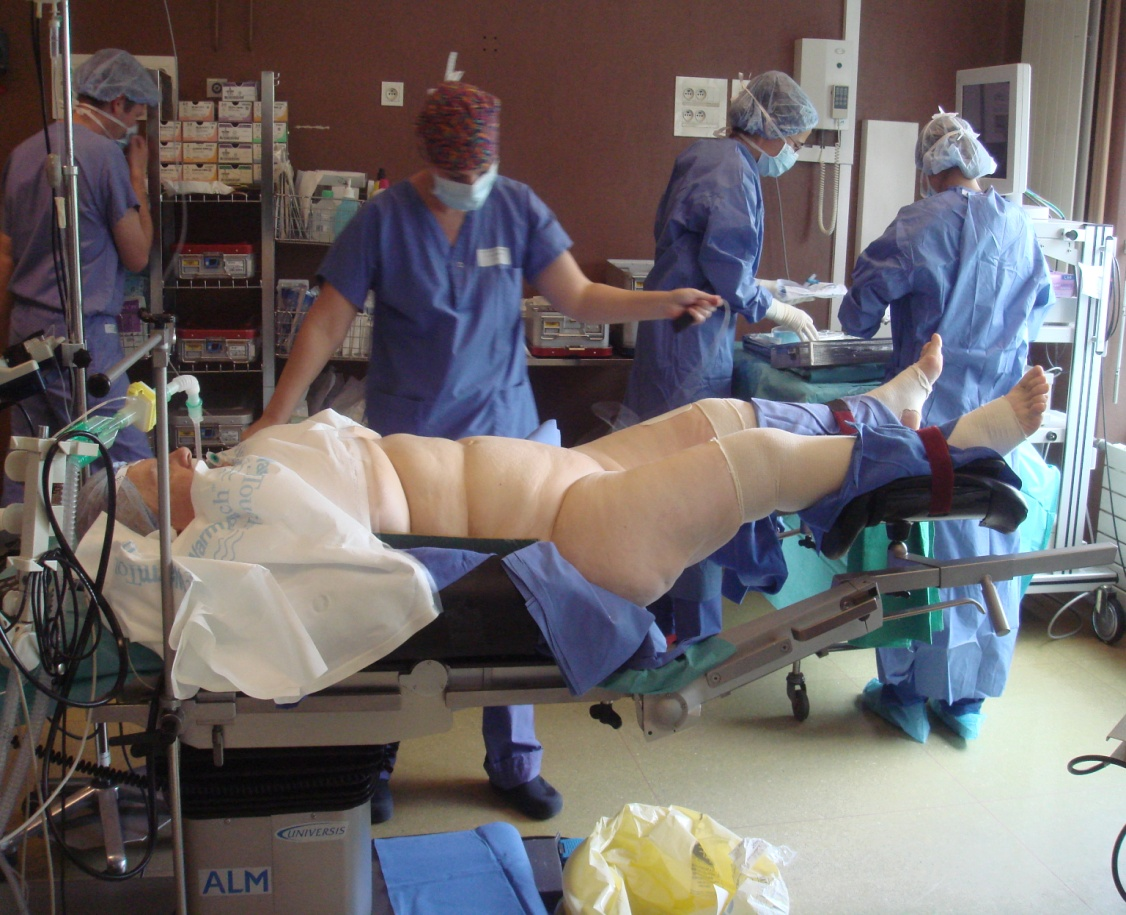 Total Laparoscopic Hysterectomy Surgical Technique And