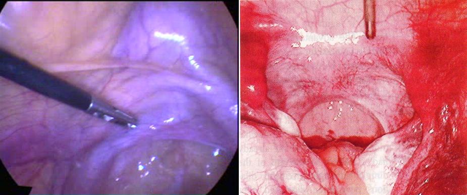 Partial band of tissue at vaginal opening — photo 9