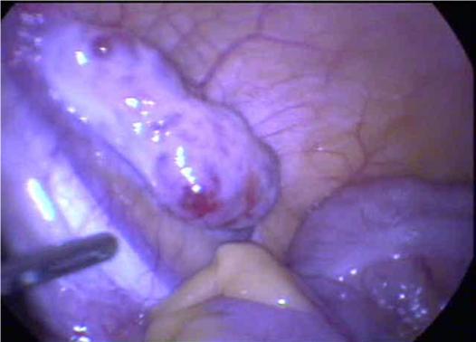 ballon in vagina