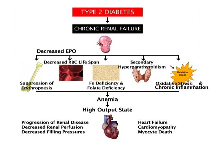 Anemia of Chronic Kidney Disease in Diabetic Patients
