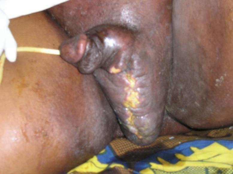 Fournier's Gangrene | IntechOpen