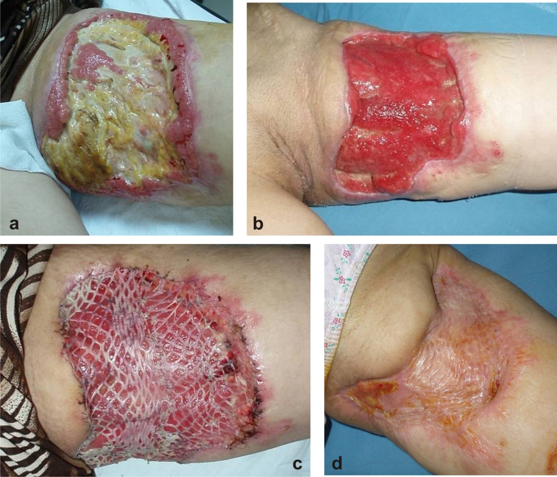 Long Term Care For Skin Graft