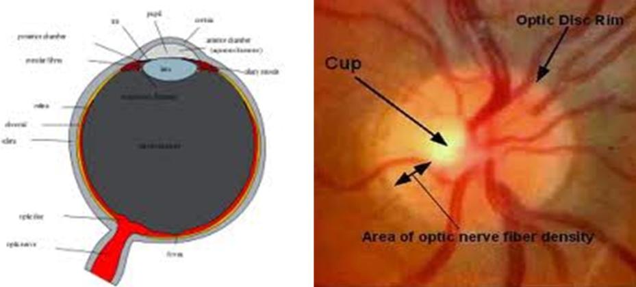 The Optic Nerve In Glaucoma Intechopen