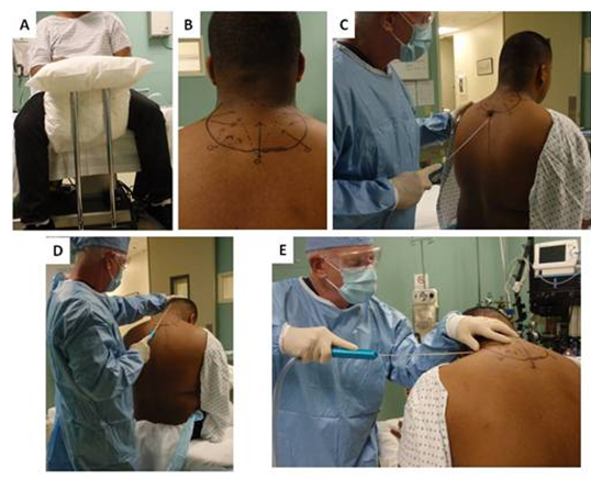 novel liposuction techniques for the treatment of hiv associated