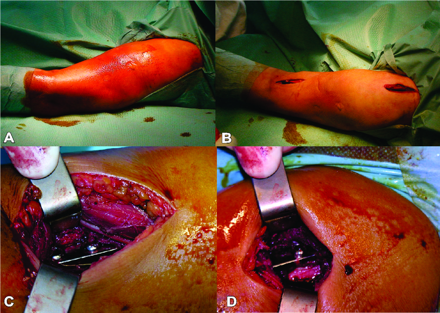 Minimally Invasive Plate Osteosynthesis (MIPO) in Long Bone