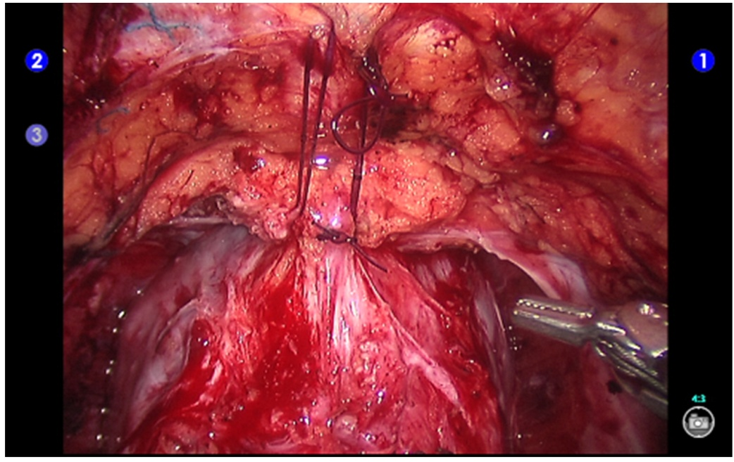 Robot Assisted Radical Prostatectomy Intechopen