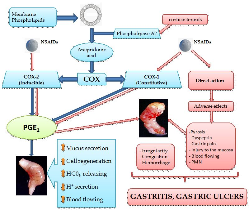 New Approaches in Gastritis Treatment | IntechOpen