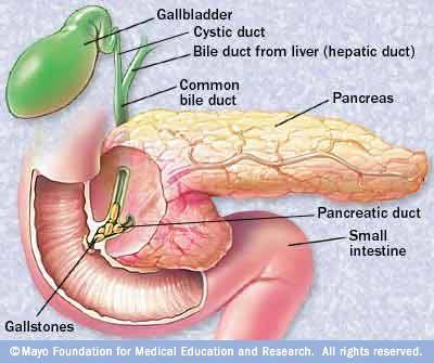 Acute Biliary Pancreatitis Intechopen