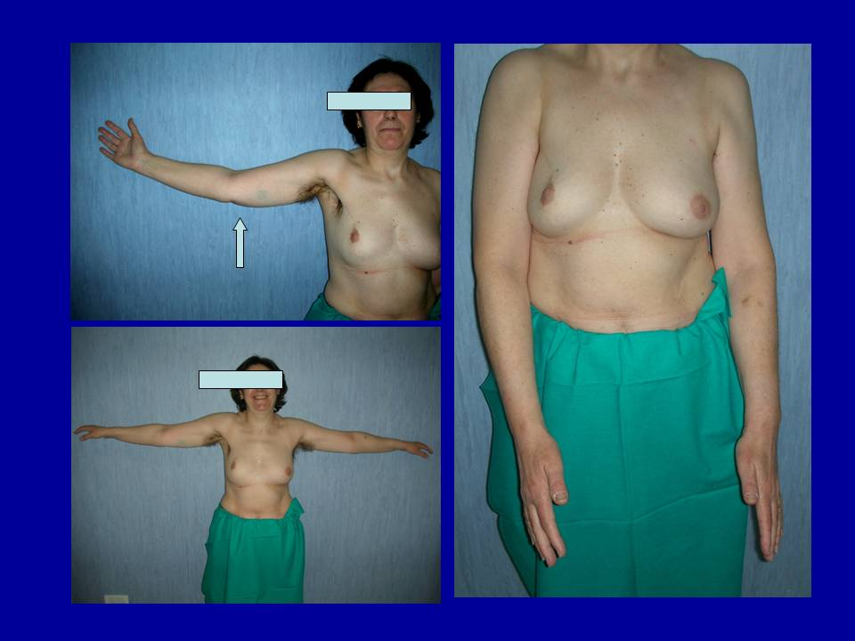 Surgical Prevention of Arm Lymphedema in Breast Cancer Treatment