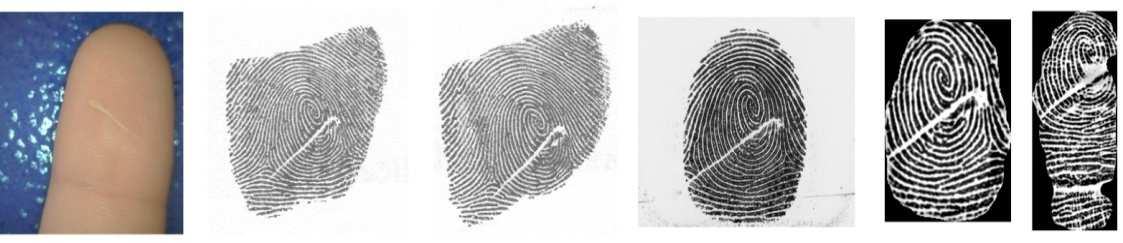 Influence of Skin Diseases on Fingerprint Quality and