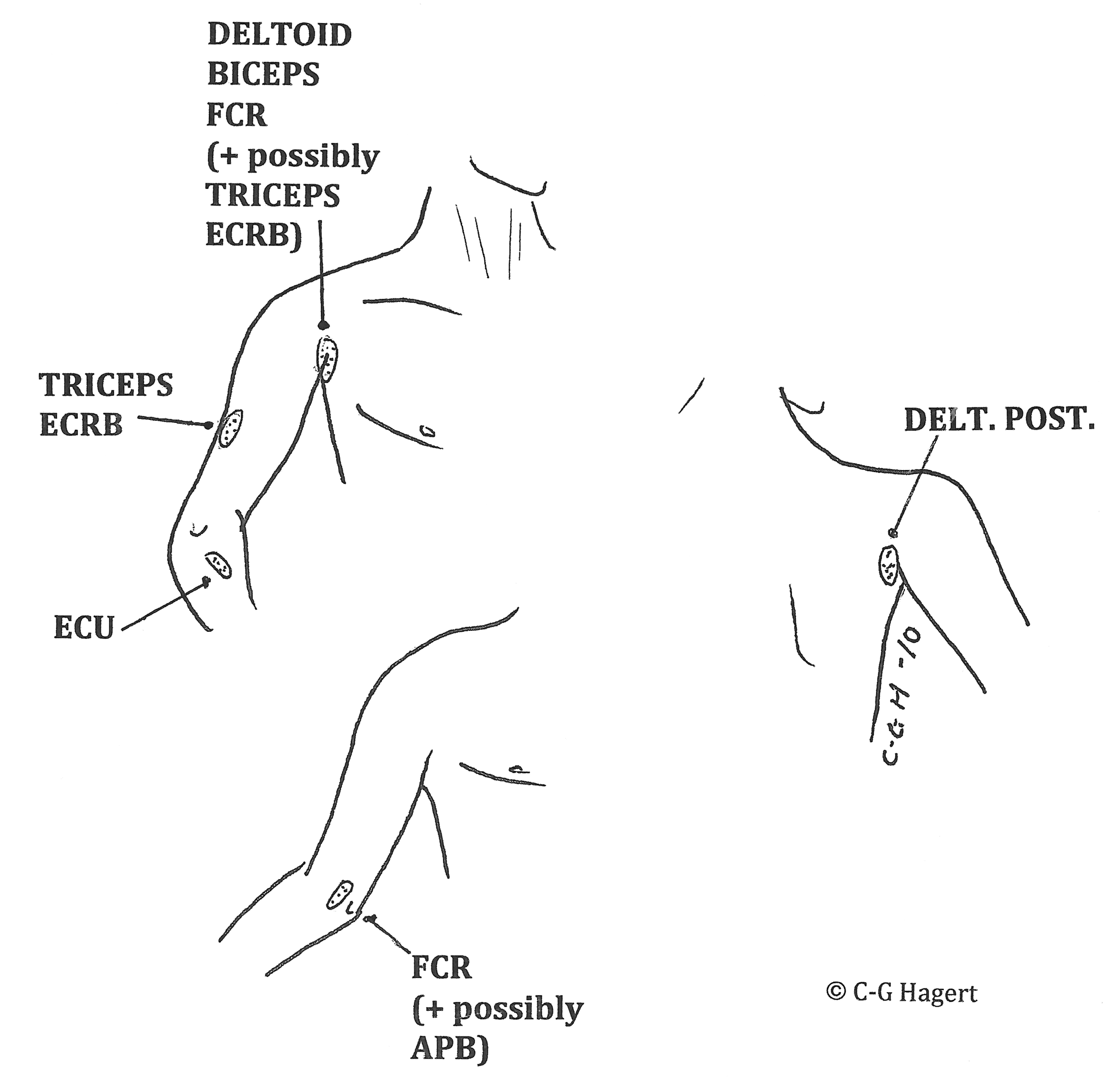 Work-Related Upper Limb Pain and Its Diagnosis: Contribution from