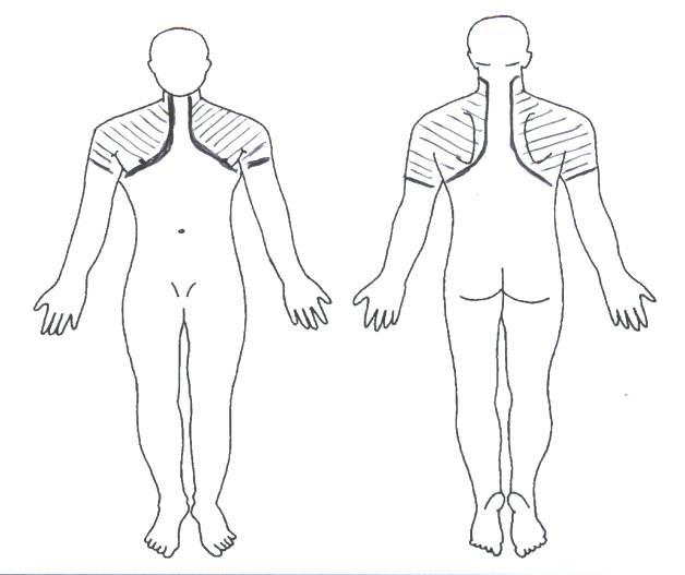 The Epidemiology Of Shoulder Pain A Narrative Review Of The