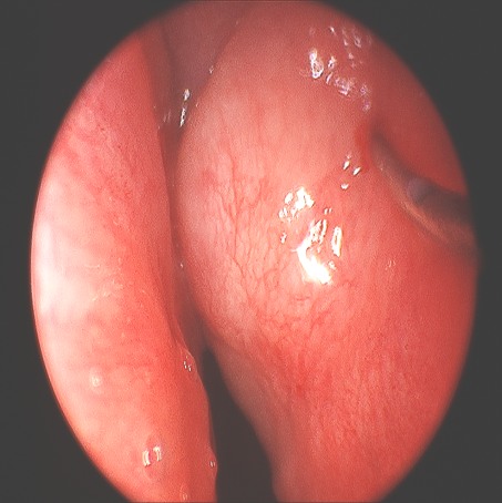 Role of Endoscopic Sinus Surgery in Pediatric Acute