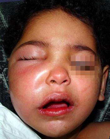Necessary right facial cellulitis