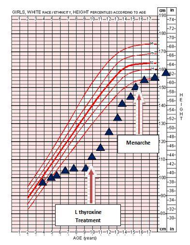Congenital Hypothyroidism: Effects on Linear Growth, Catch