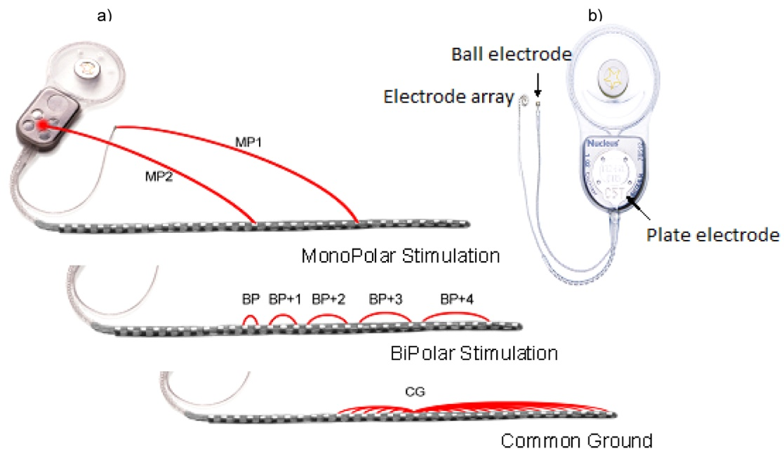 Cochlear Implant Stimulation Rates and Speech Perception