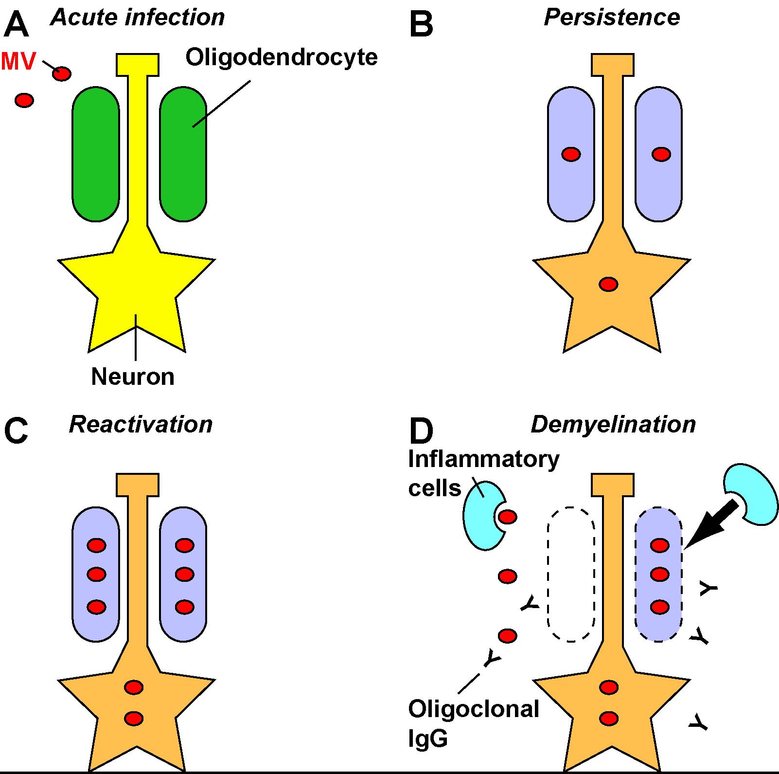 Pathogenesis of Encephalitis Caused by Persistent Measles Virus ...