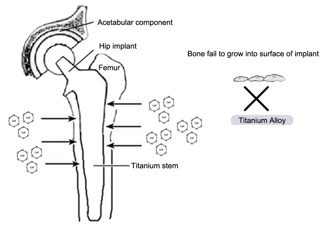 Titanium Alloys in Orthopaedics   IntechOpen