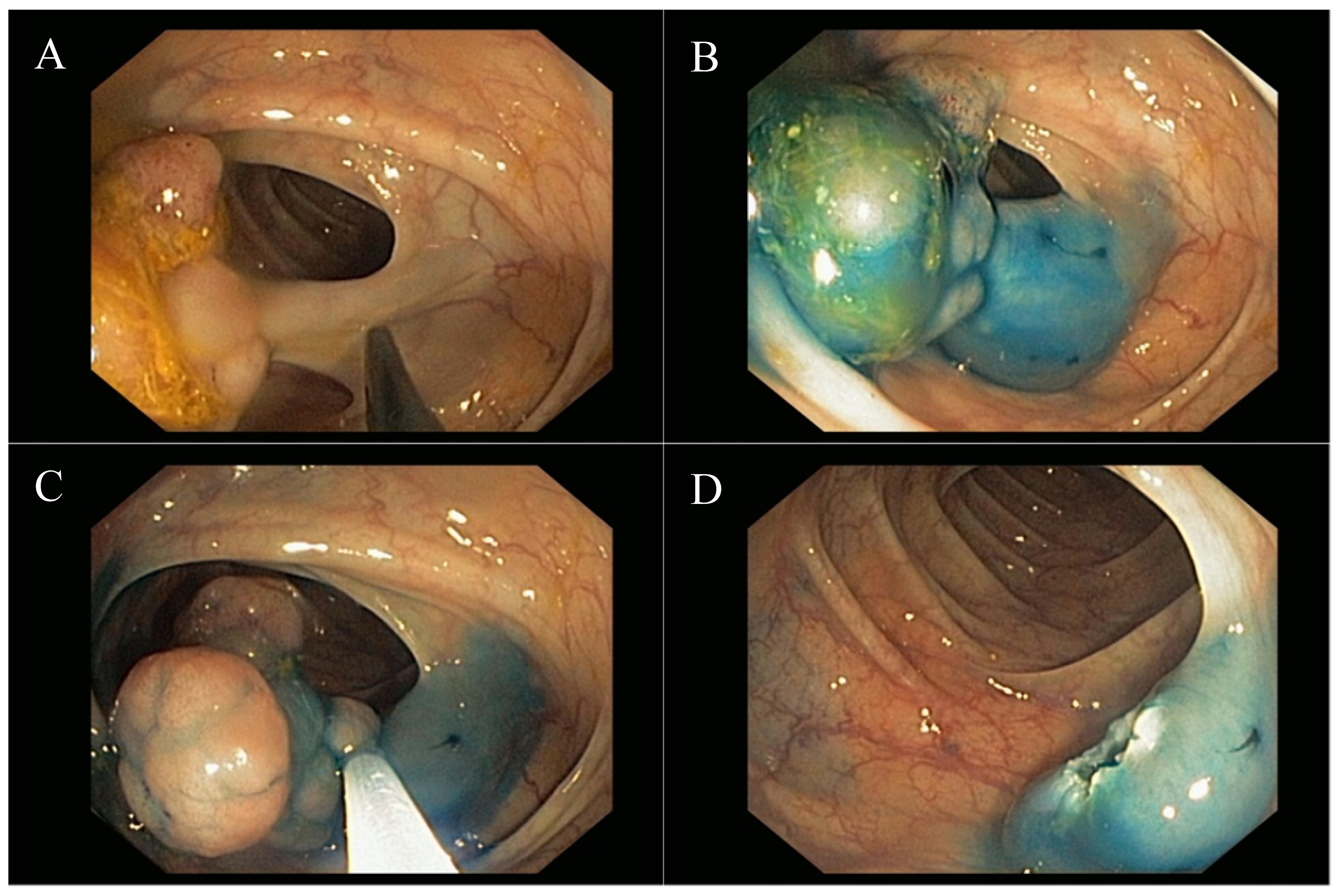 Malignant Colorectal Polyps Diagnosis Treatment And Prognosis Intechopen
