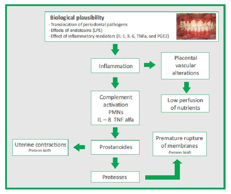 Interrelation Between Periodontal Disease and Preterm Birth