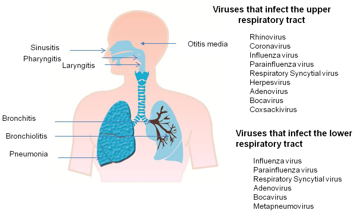 Image result for image of Respiratory infections