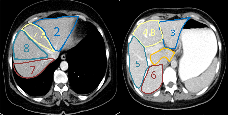 Segmental Oriented Liver Surgery Intechopen