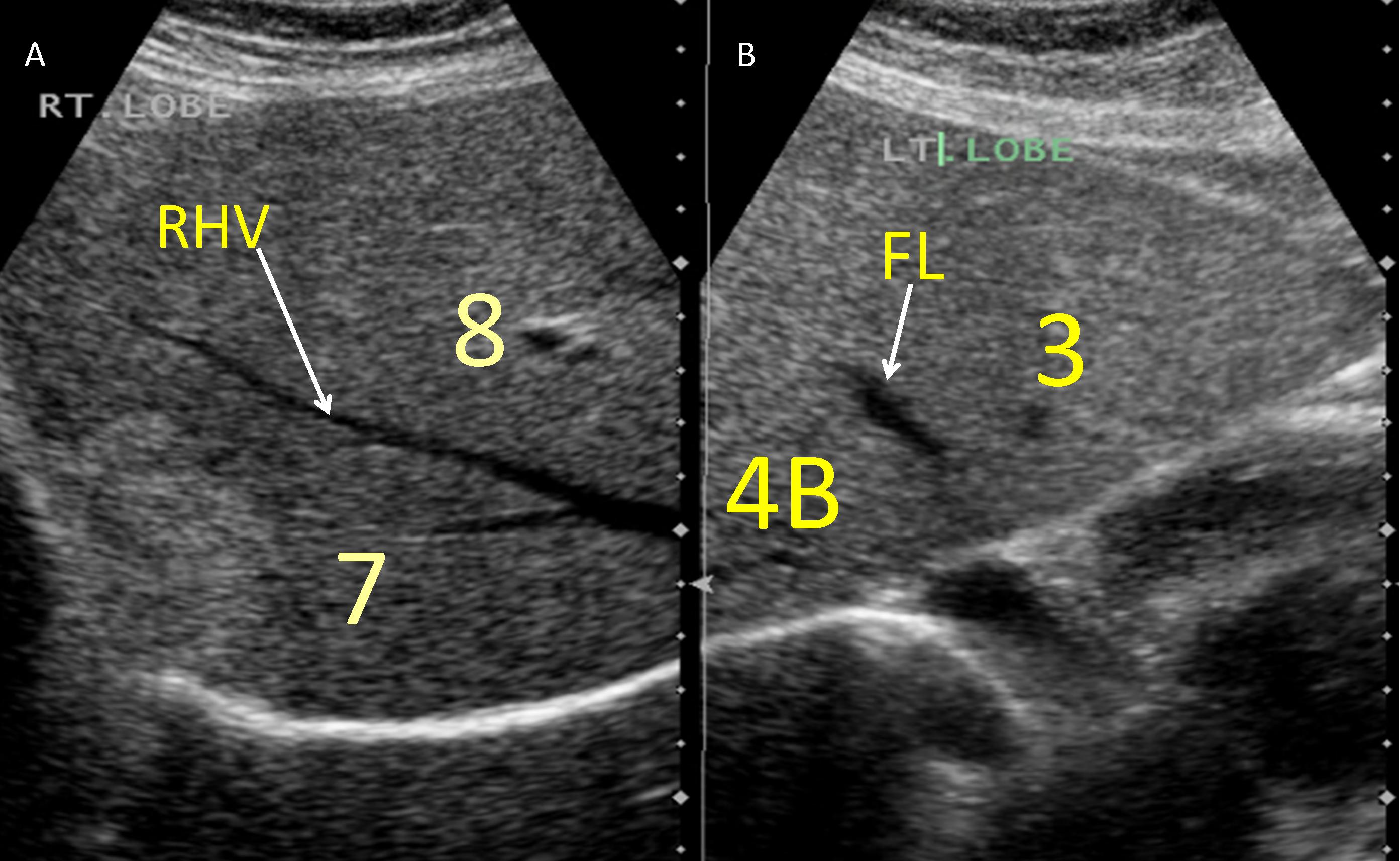 Segmental Oriented Liver Surgery | IntechOpen