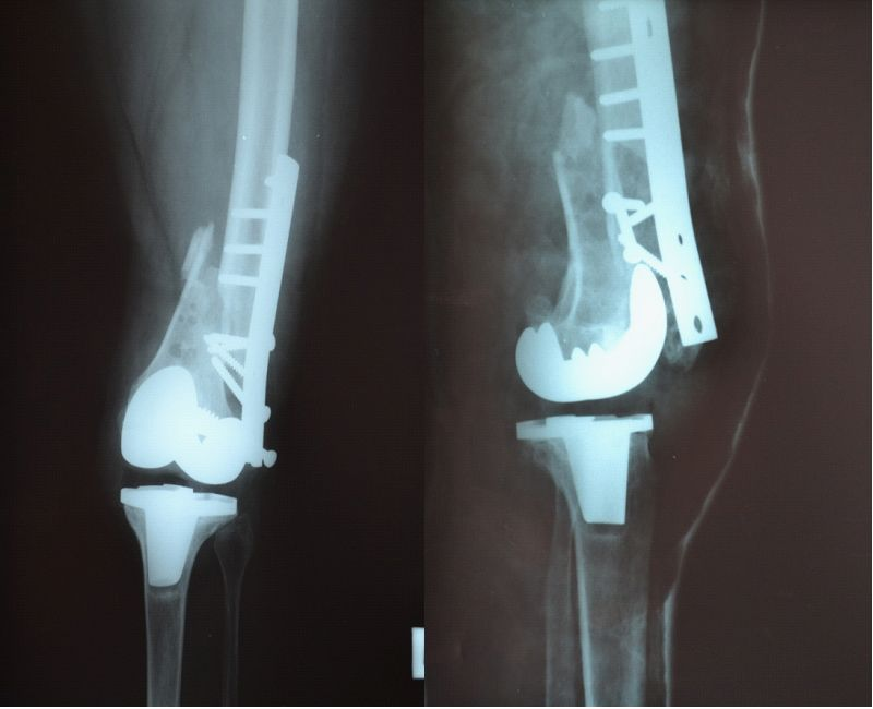 Periprosthetic Femoral Fractures in Total Knee Arthroplasty