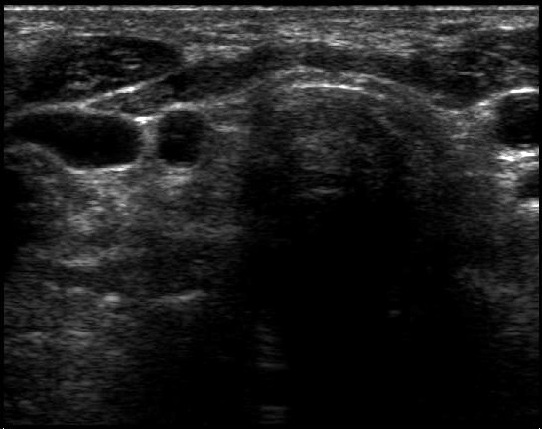 The Role Of Ultrasound In The Differential Diagnosis Of