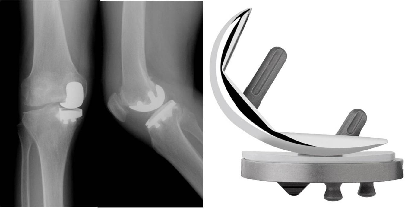 The Evolution of Modern Total Knee Prostheses | IntechOpen
