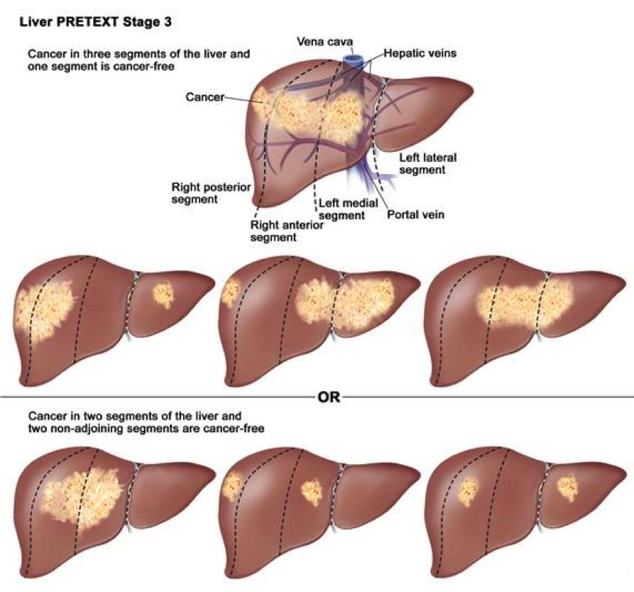 Liver Tumors In Infancy Intechopen