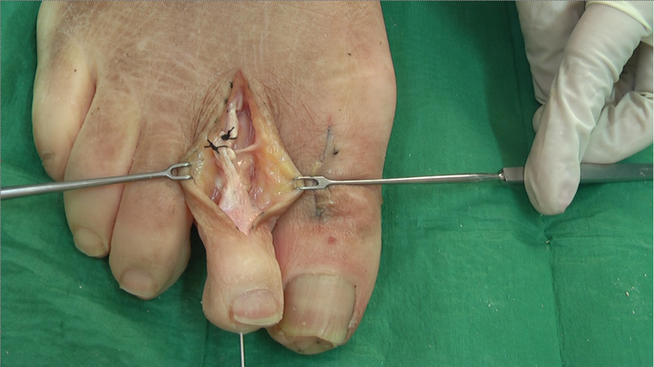 Proximal Interphalangeal Joint Arthrodesis With Tendon Transfer Of