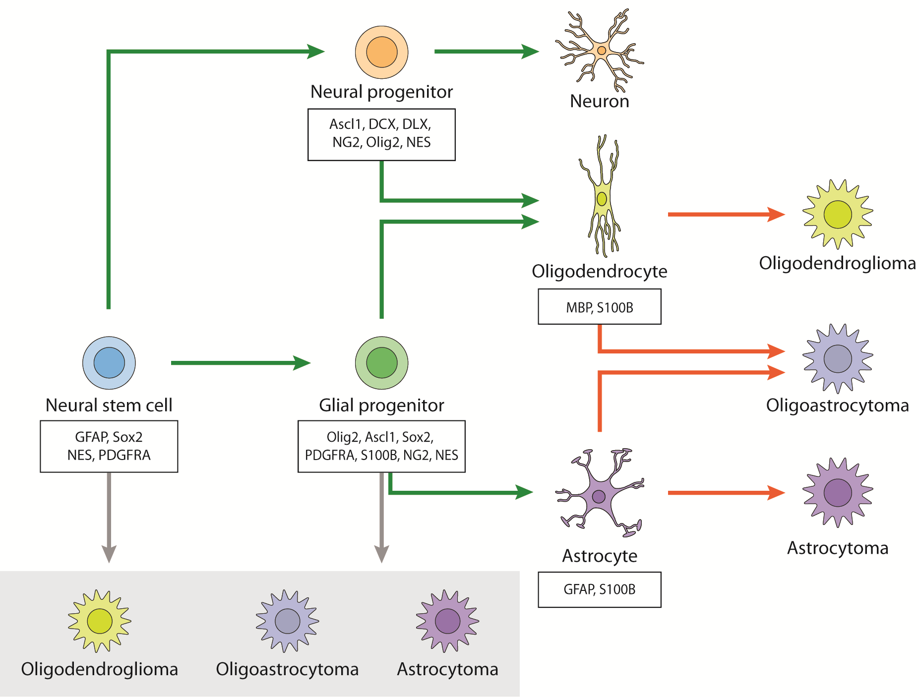 Mechanisms of Aggressiveness in Glioblastoma: Prognostic and