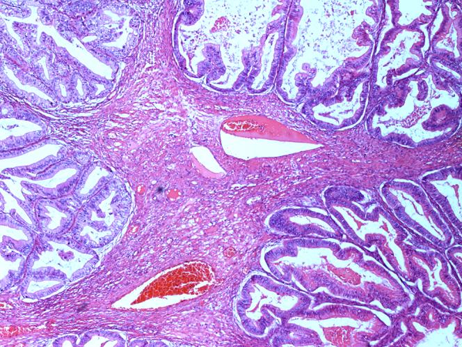 Borderline Epithelial Tumors Of The Ovary Intechopen