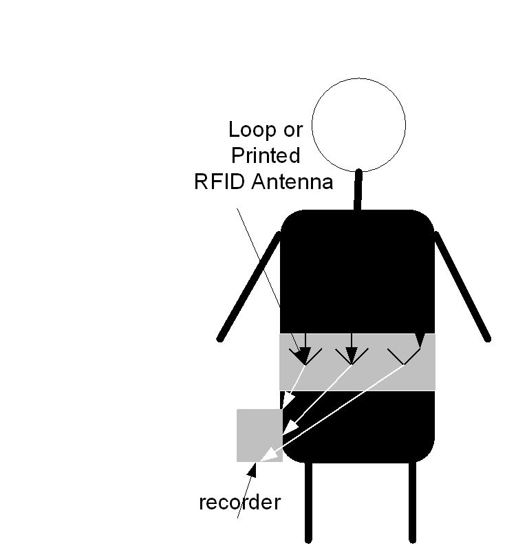 Wearable Antennas for Medical Applications   IntechOpen