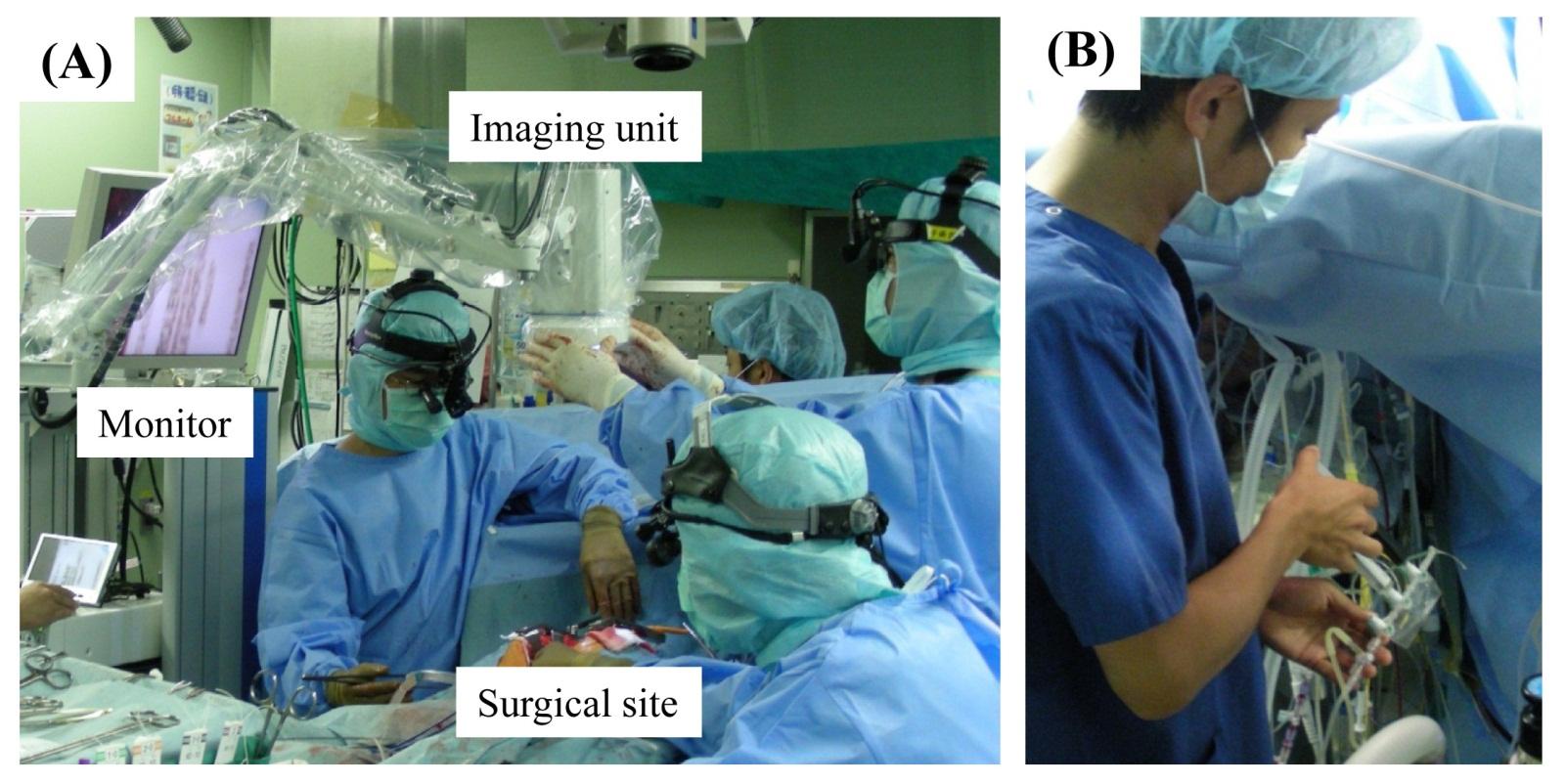 Intraoperative Indocyanine Green Imaging Technique in