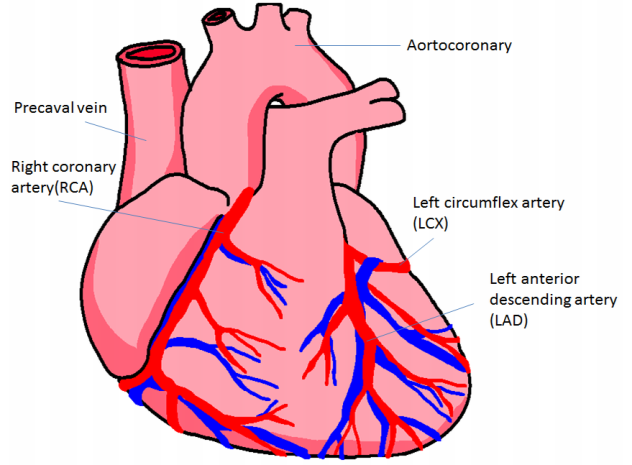 Generating Graphical Reports on Cardiac Catheterization ...