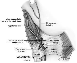Compression Neuropathies Intechopen