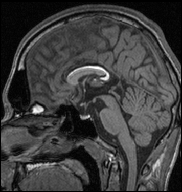 Radiology Imaging Techniques of Brain Tumours | IntechOpen