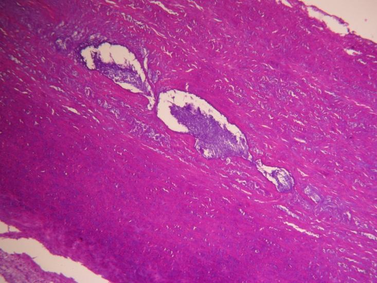 Etiology and Pathogenesis of Aortic Aneurysm | IntechOpen