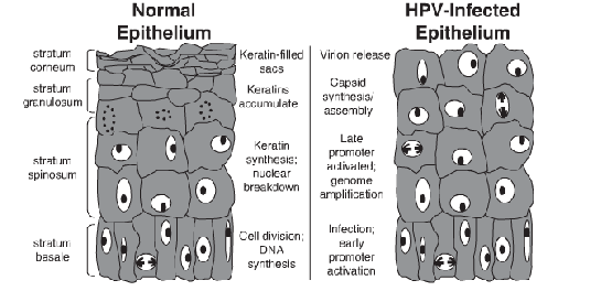 Hpv 16 and 18 penile cancer, Hpv type penile cancer.