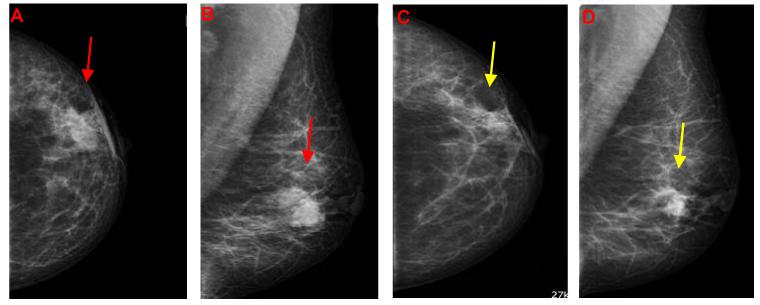 Nodule density in breast
