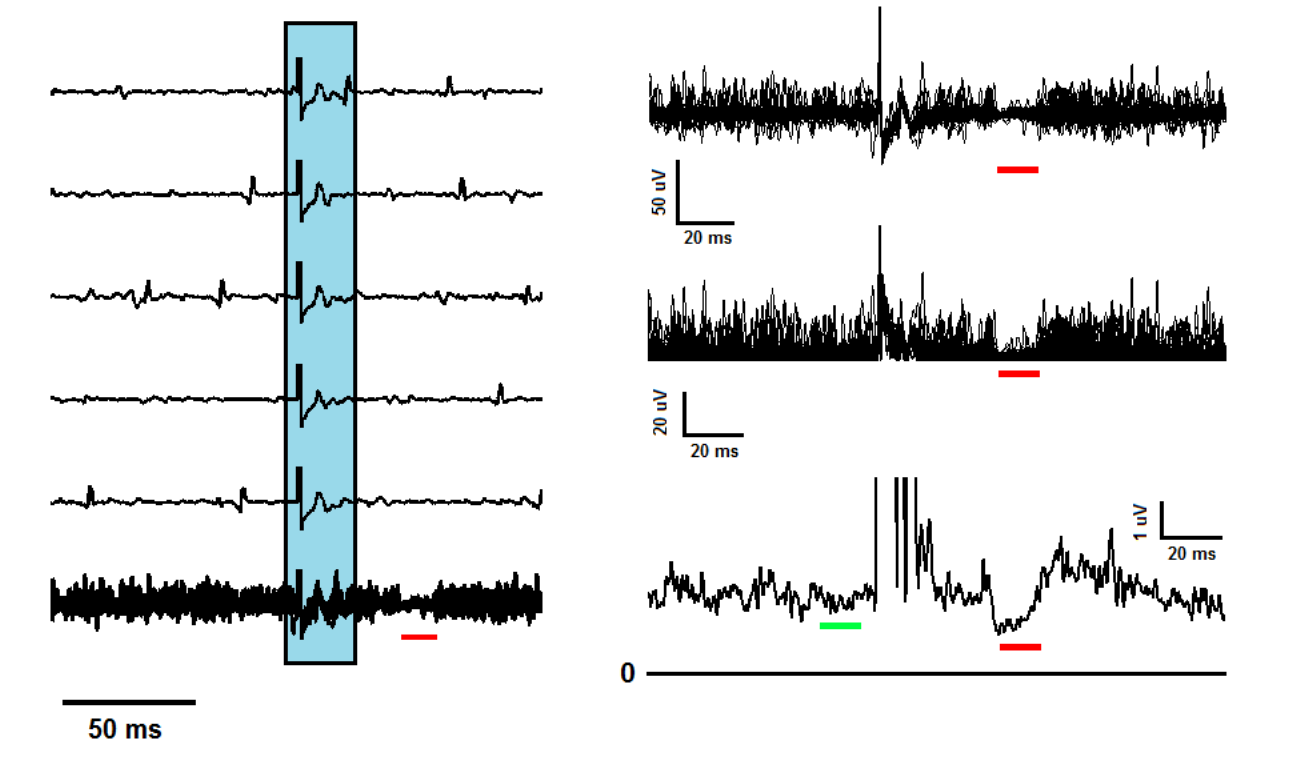Experimental And Simulated Emg Responses In The Study Of Human Interval Methods For Analog Circuits Intechopen Figure 5
