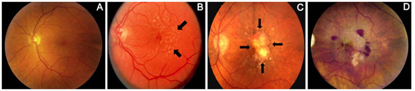 Cigarette Smoking And Hypertension Two Risk Factors For Age Related Macular Degeneration Intechopen