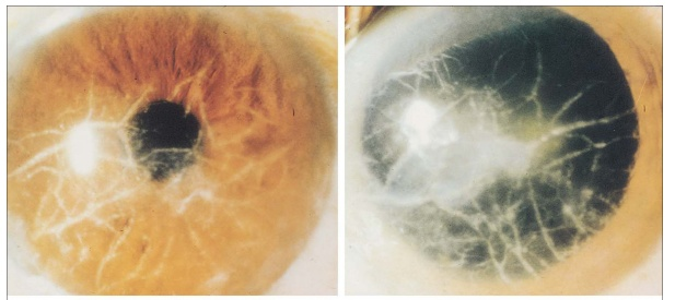 Ocular Presentations of Amyloidosis | IntechOpen