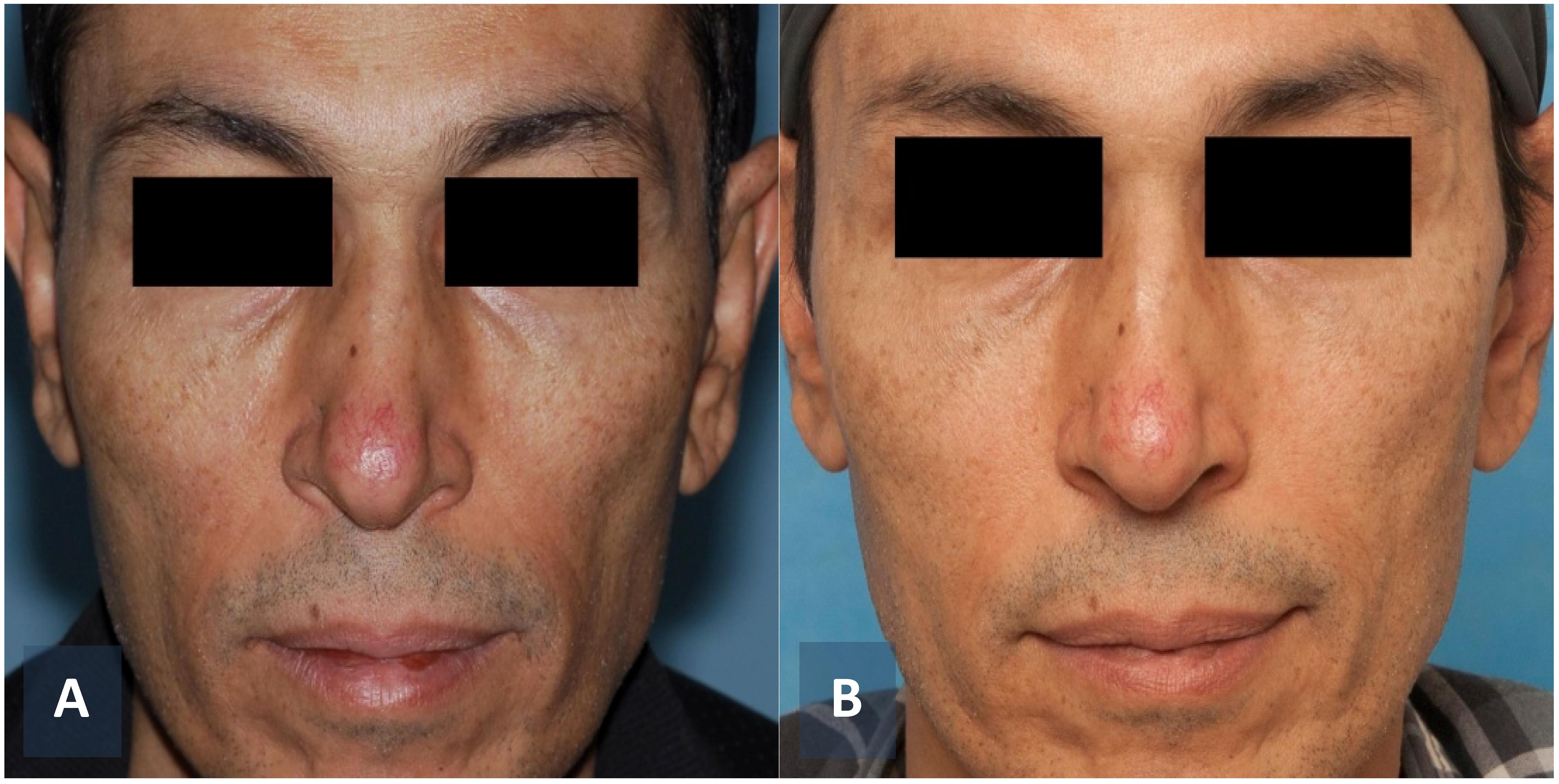 Office – Based Facial Cosmetic Procedures | IntechOpen