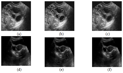 Follicle Detection And Ovarian Classification In Digital Ultrasound Images Of Ovaries Intechopen