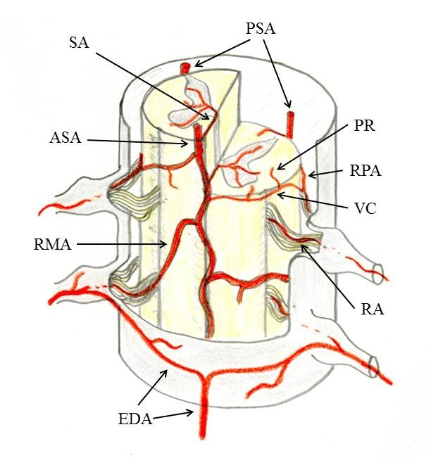 Spinal Arteriovenous Fistulas And Arteriovenous Malformations